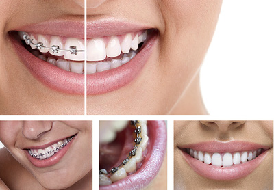 braces multiview